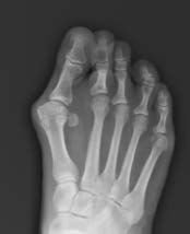 Pre-op A/P X-Ray Image