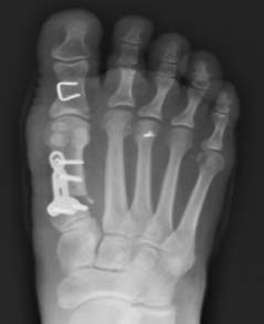 Immediate Post-op A/P X-Ray with OSSIOfiber® Trimmable Nail trajectory in green
