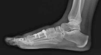 SurgTech2 Immediate Post-op Lateral X-Ray with OSSIOfiber® Trimmable Nail trajectory in green